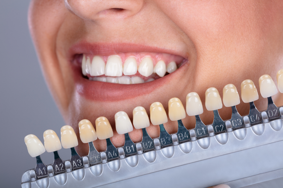 Six Types of Cosmetic Dentistry | My Bowie Dentist