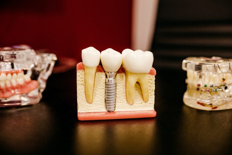 Everything to Know About Dental Insurance